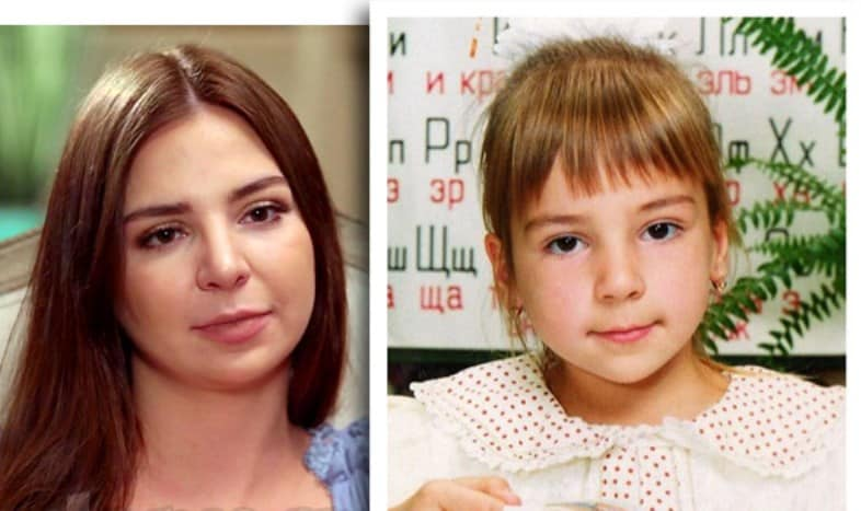90 Day Fiance Anifsa Nave Before Plastic Surgery