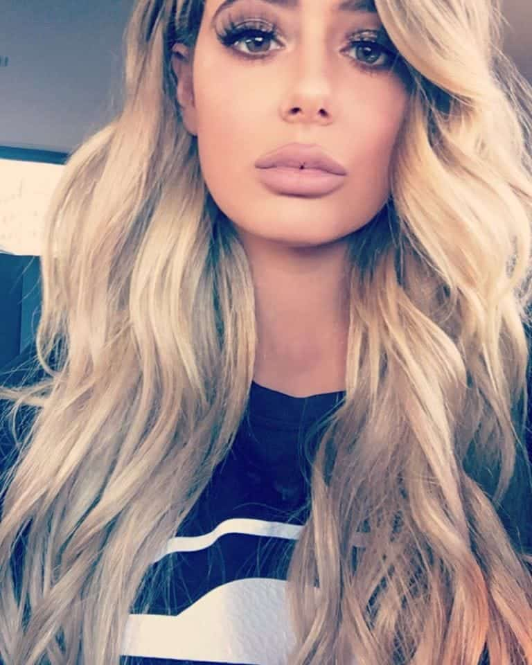 Brielle Biermann Lips Plastic Surgery