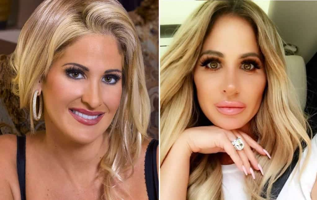 2017 Kim Zolciak Biermann Before and After Plastic Surgery Lips
