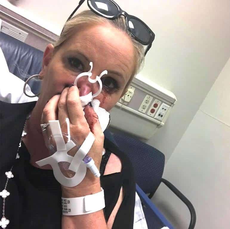 Shannon Beador Hospital Nose Bleed