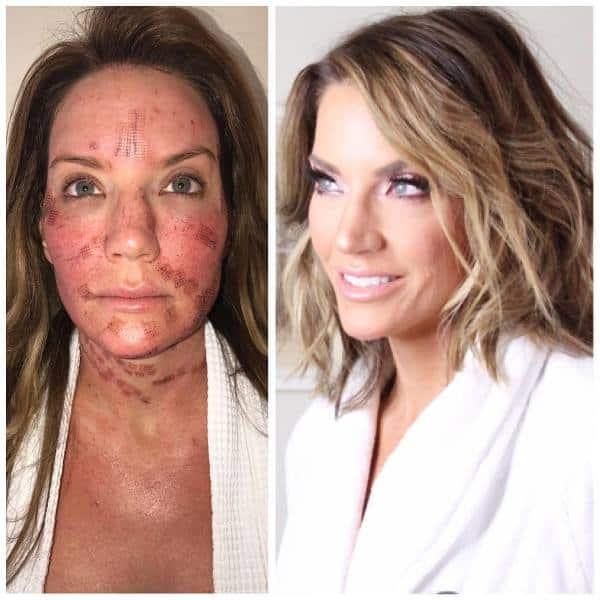 Cary Deuber Face Skin Laser Resurfacing