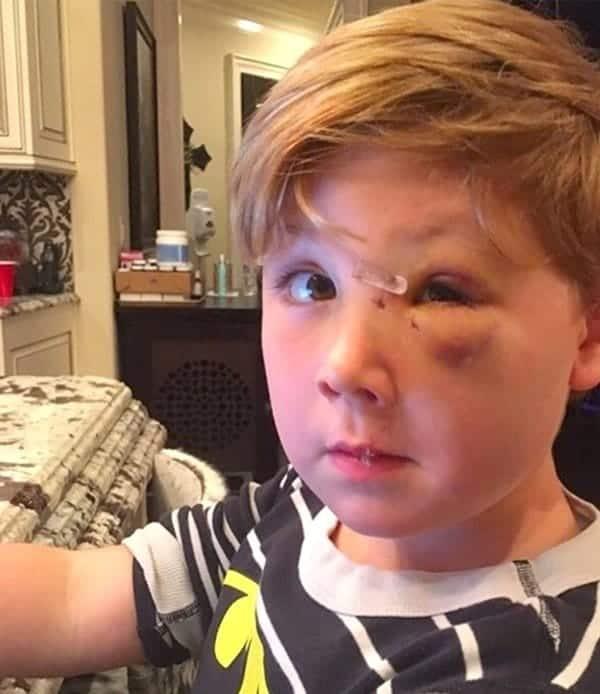 Kash Biermann Dog Bite Attack