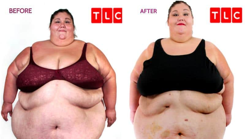 600 lb life Alicia Before and After Weight Loss