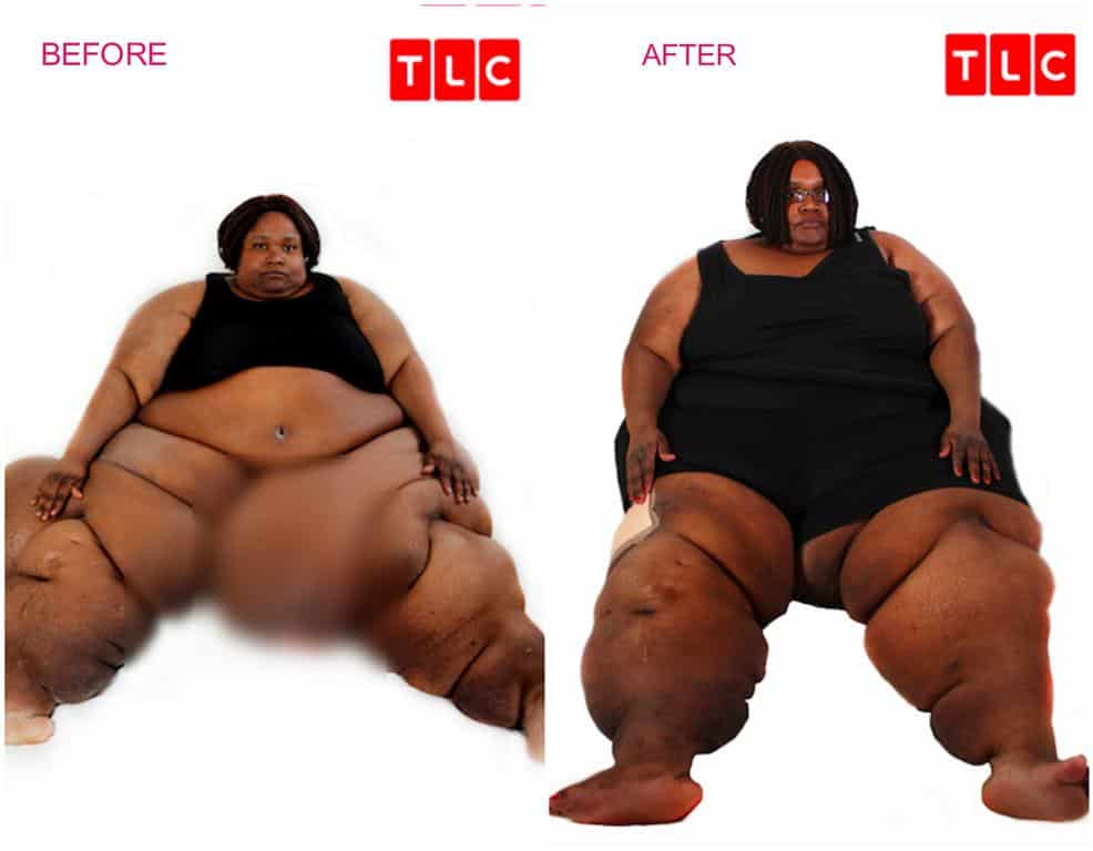 My 600 Lb Life Liz Update Before And After Photo