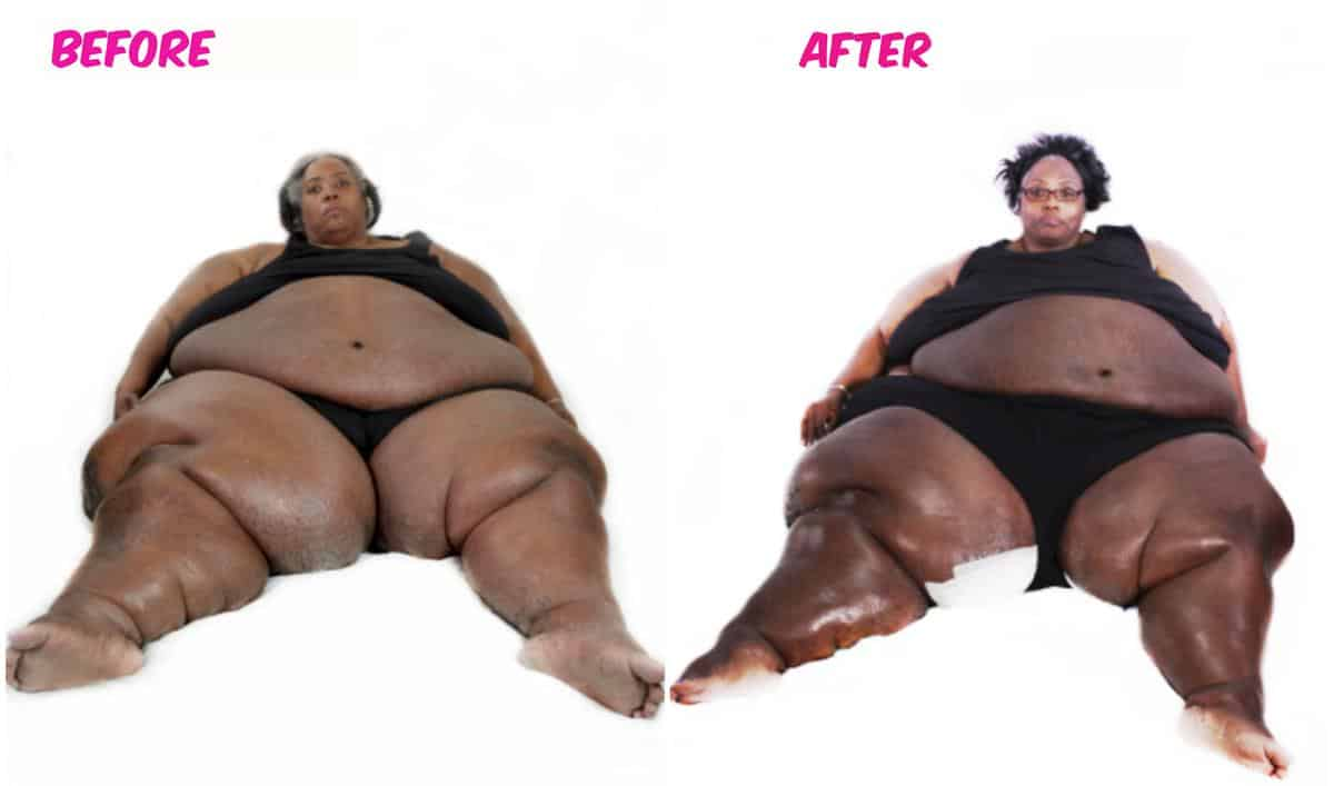 My 600 Lb Life Lisa Before and After