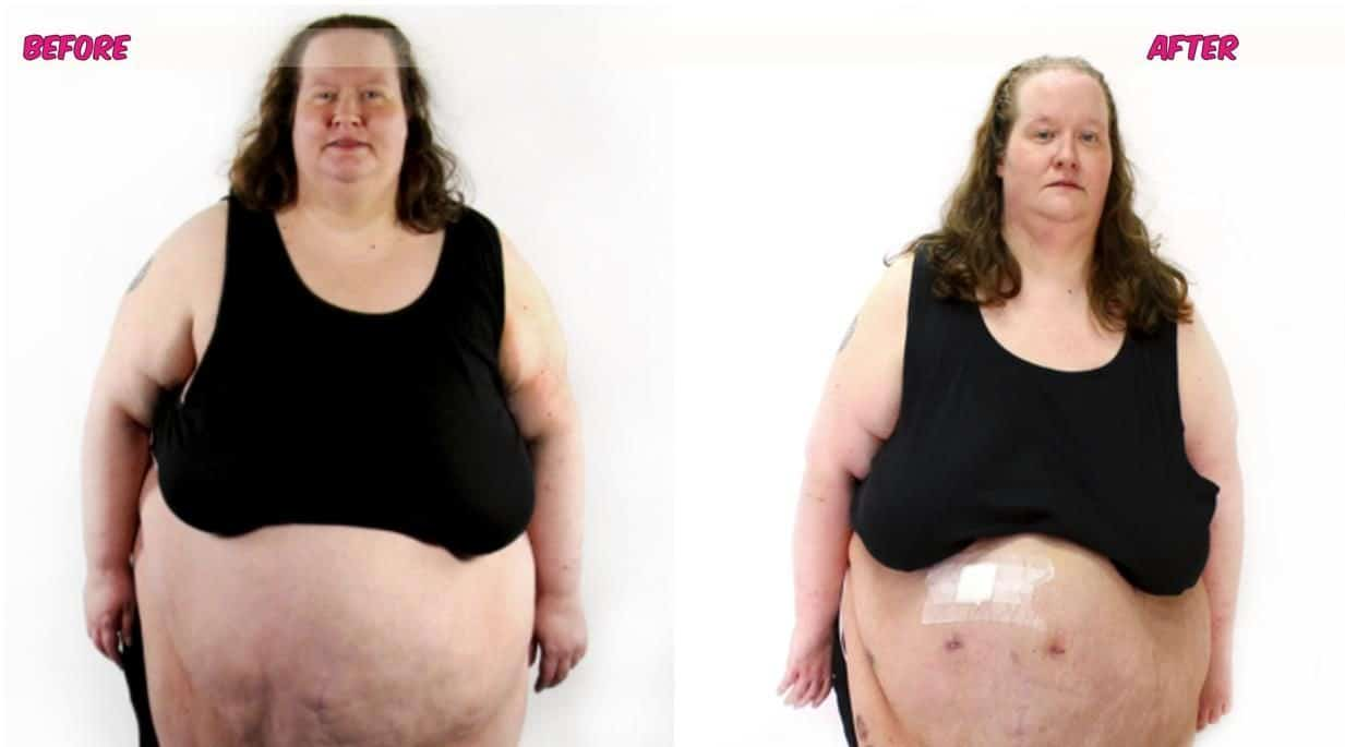 My 600 LB Life Tamy Lyn Murrell Before and After Update