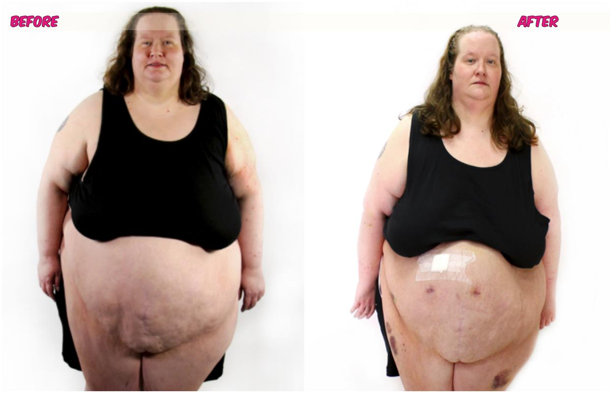 my 600 pound life before and after my 600 lb life star ...