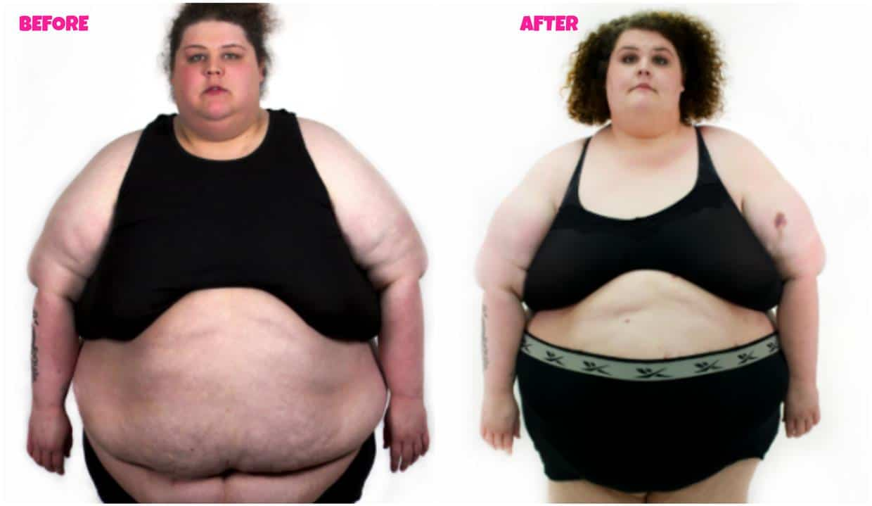 my 600 lb life sarah neeley before and after photo update