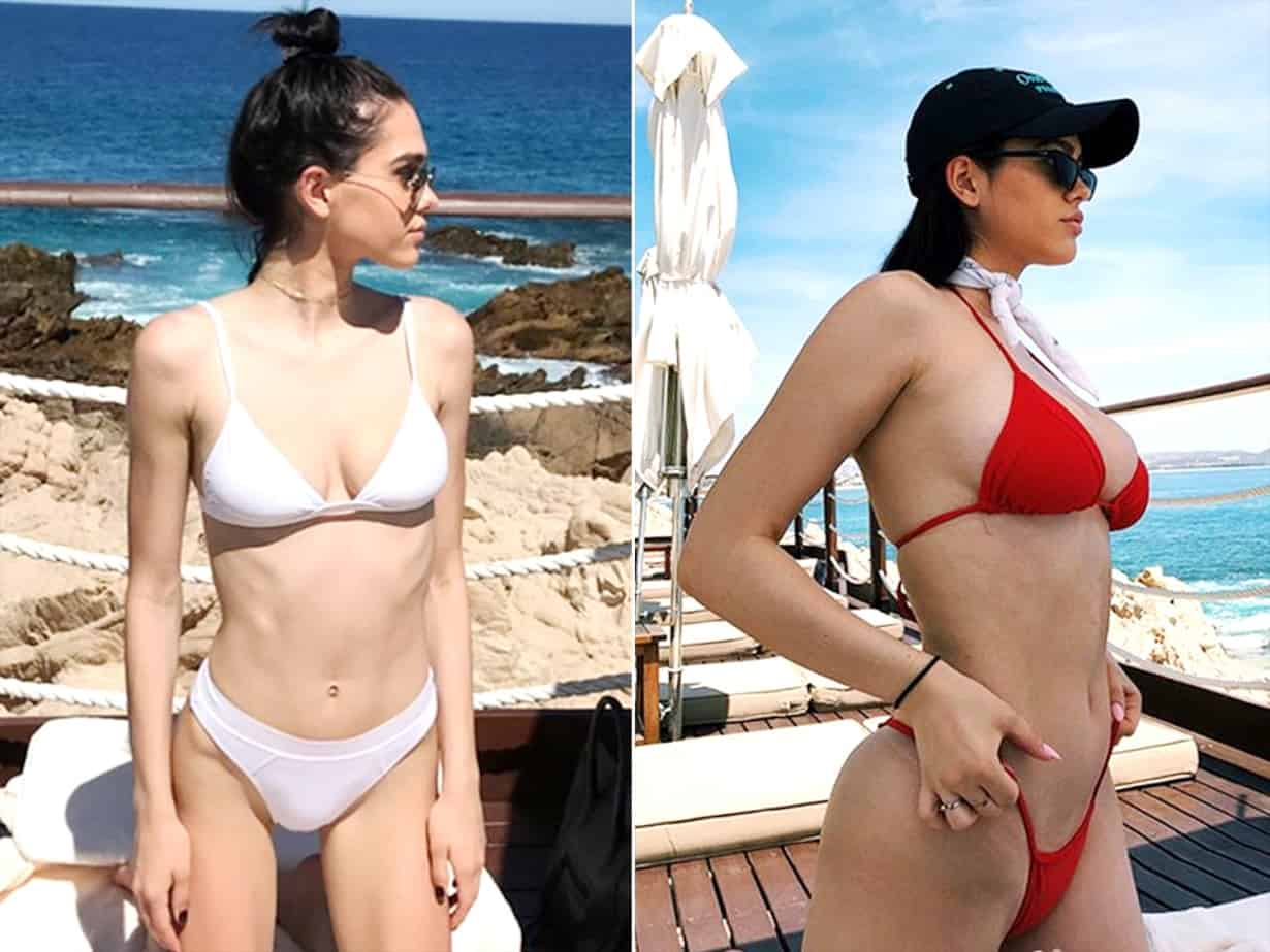 Amelia Gray Hamlin Before and After Anorexia
