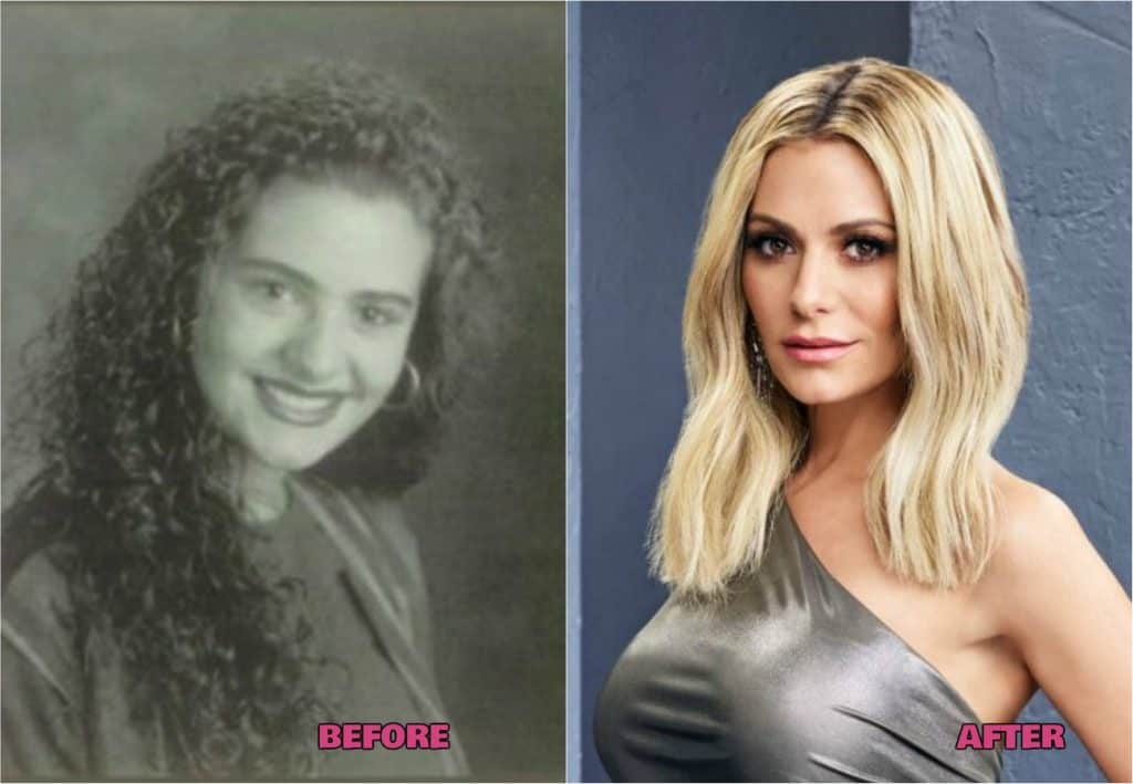 RHOBH Dorit Kemsley Plastic Surgery Before and After Photos