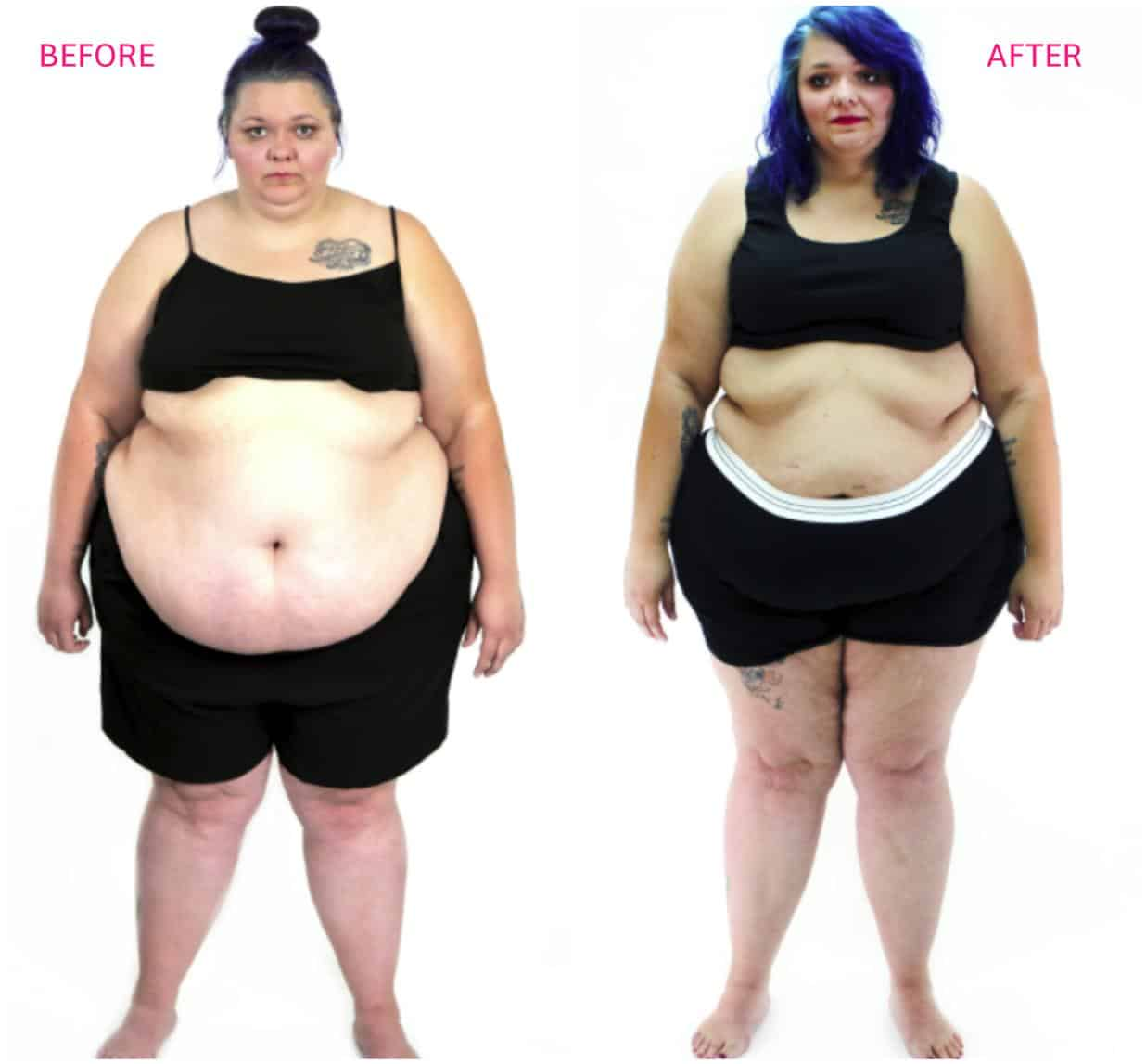 MY 600 LB LIFE MARISSA JESS BEFORE AND AFTER PHOTOS