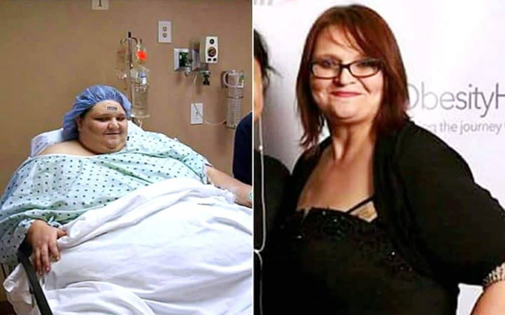 My 600-Lb Life Melissa Morris Weight Loss Photos Update
