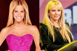 dina manzo before and after nose job