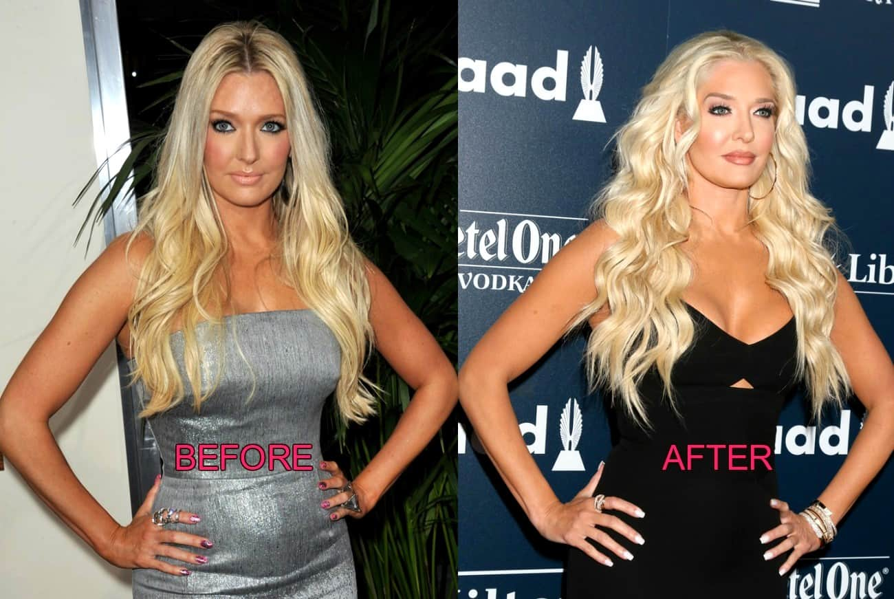 Erika Jayne Before and After Plastic Surgery Photos