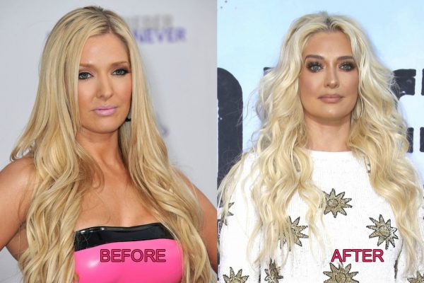RHOBH Erika Jayne Before and After Plastic Surgery Photos