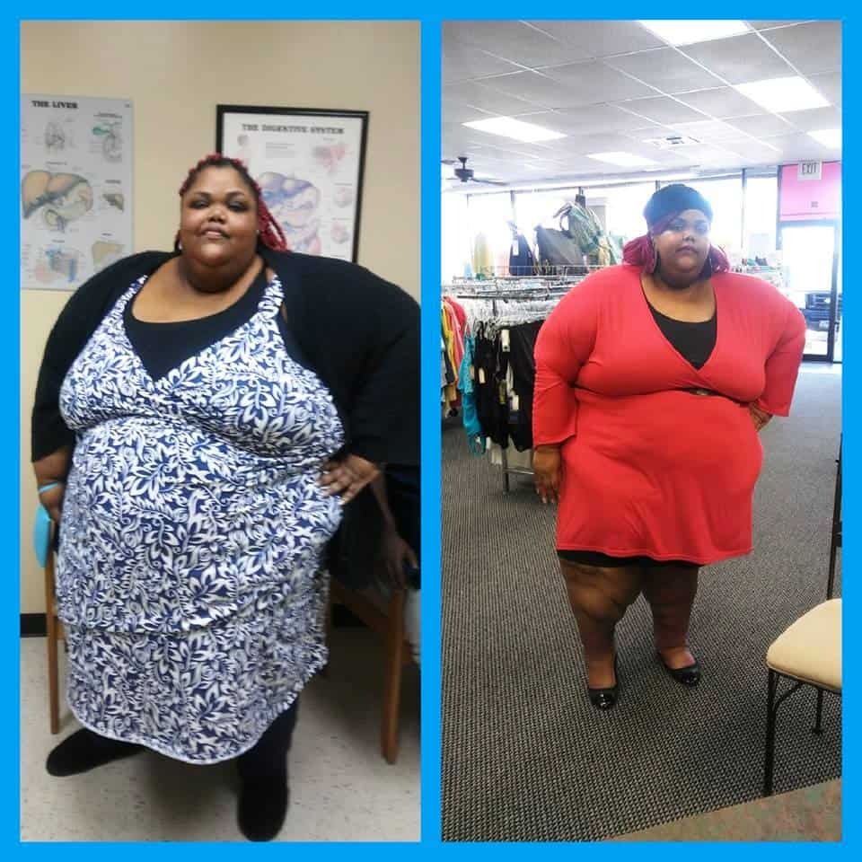 My 600 Lb Life Roshanda Perrio Before and After Photo