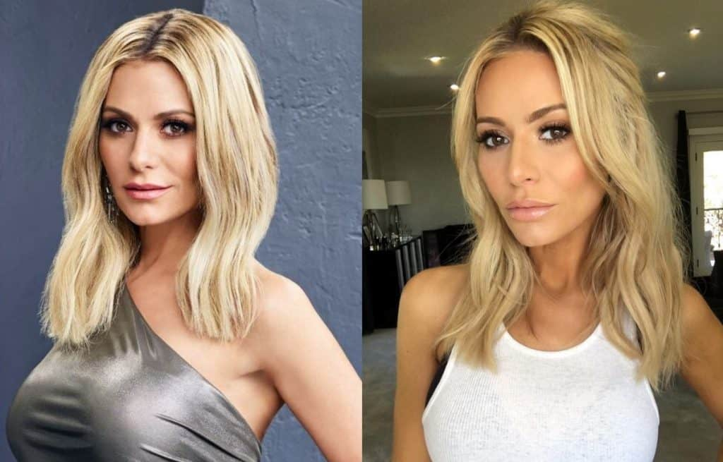 RHOBH Dorit Kemsley new face before and after plastic surgery