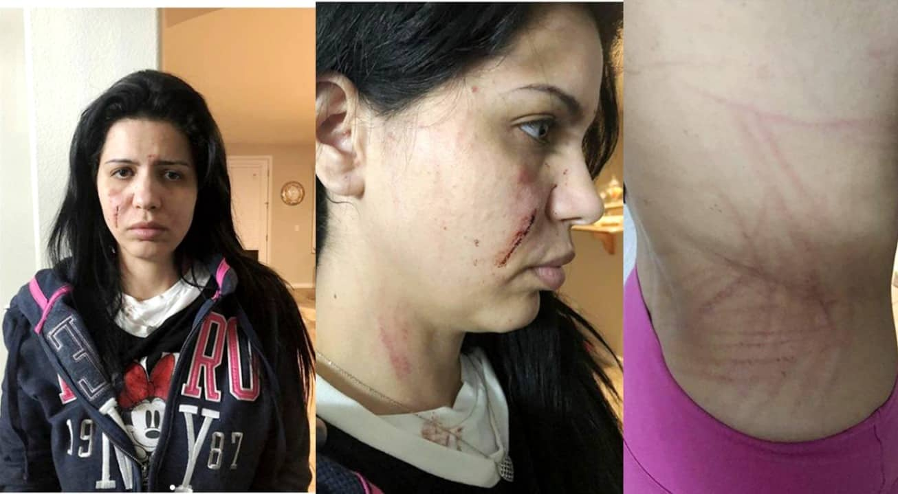 90 Day Fiance Larissa bloody injuries after Colt Fight