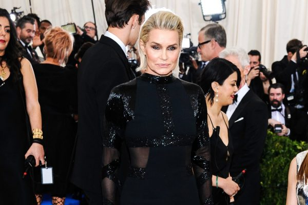 RHOBH Star Yolanda Hadid Removes Botox, Fillers, and Breast Implants