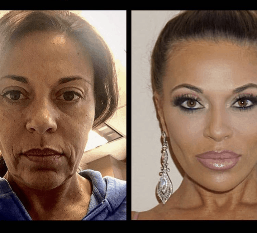 RHONJ Dolores Catania Before And After Plastic Surgery