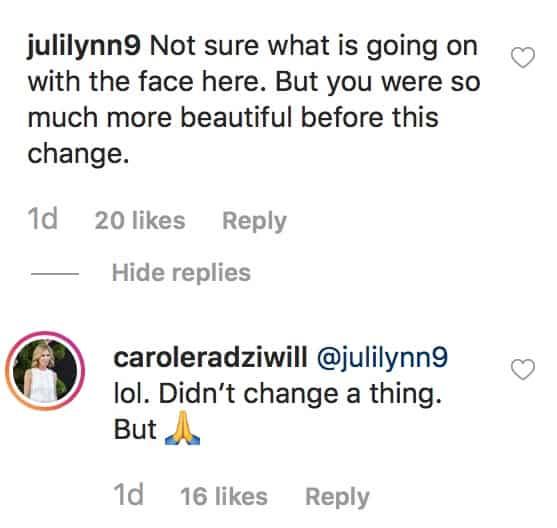 RHONY Carole Radziwill Denies Plastic Surgery