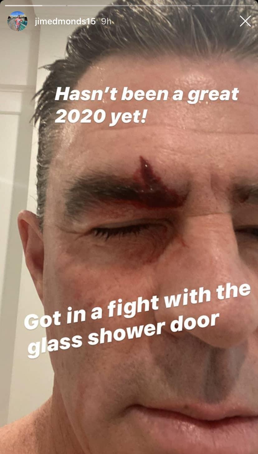 RHOC Jim Edmonds Sustains Injury in Shower Door Incident