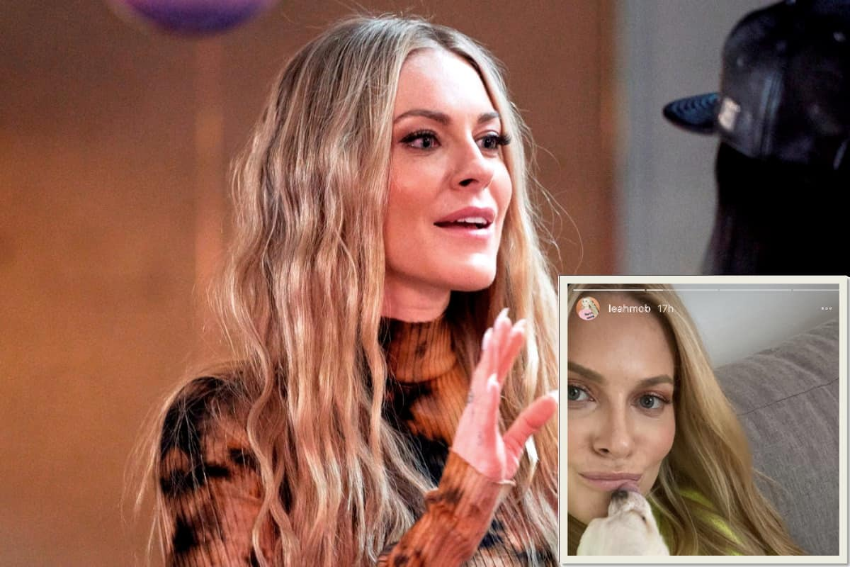 PHOTOS: RHONY Star Leah McSweeney Debuts Her New Nose After Plastic Surgery! See Before and After Photos as She Rocks Her Fresh-Faced Look