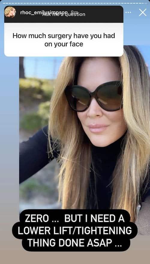 RHOC Emily Simspon Denies Having Plastic Surgery on Her Face