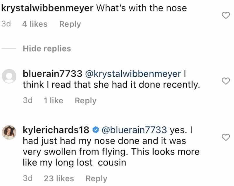RHOBH Kyle Richards Defends Swollen Nose After Plastic Surgery