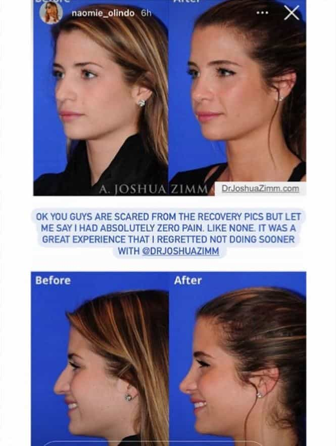 Naomie Olindo before and after nose job photos