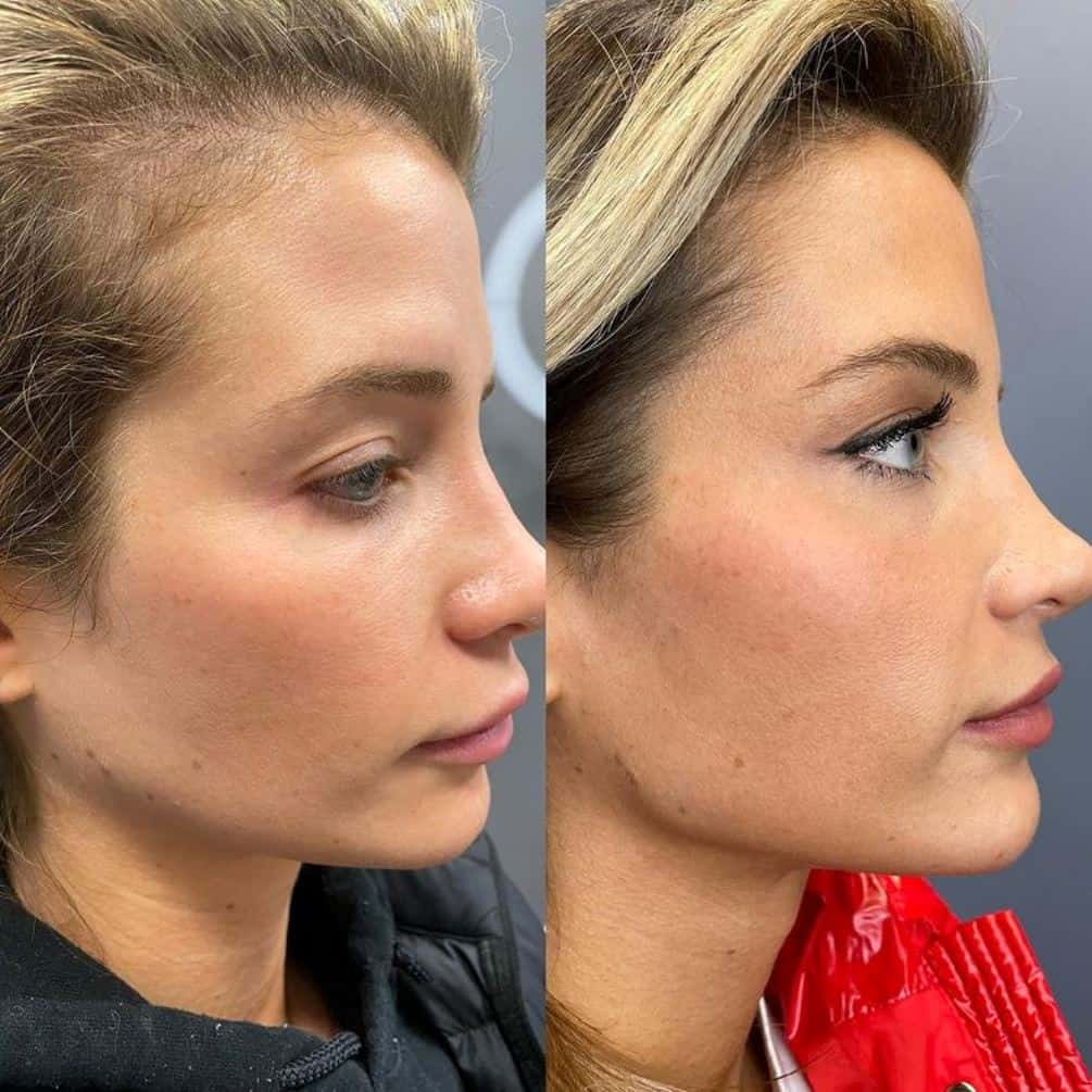 Naomie Olindo plastic surgery before and after jaw fillers jawline