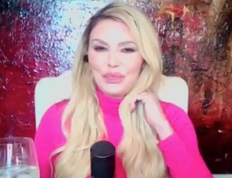 RHOBH Brandi Glanville Overdoes Botox and Filler