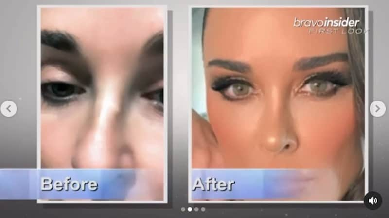 RHOBH Kyle Richards Before and After Photos of Nose JOb