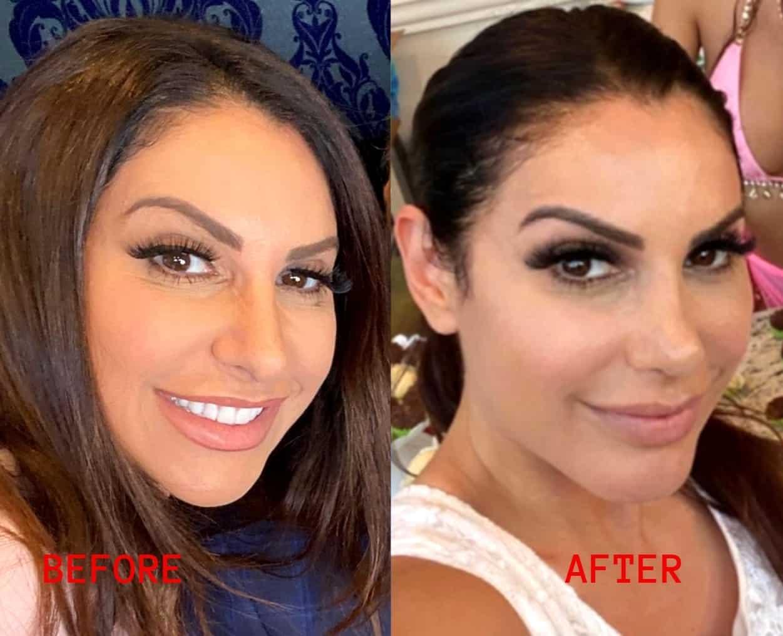 RHONJ Jennifer Aydin Before and After Photos of Nose Job Plastic Surgery