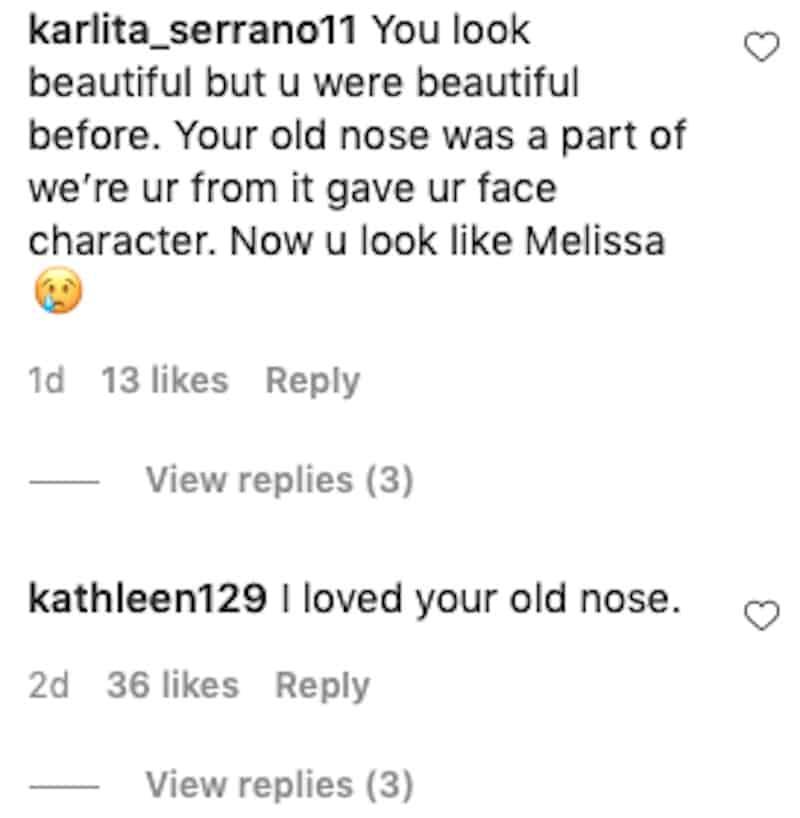 RHONJ Jennifer Aydin's New Nose Garners Backlash