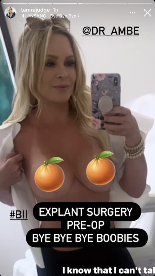 RHOC Tamra Judge Says 'Bye' to Breast Implants