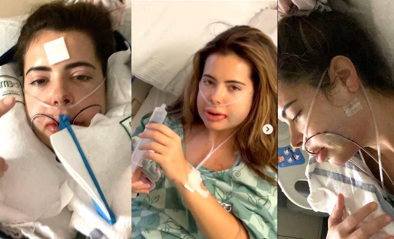 brielle biermann tmj jaw surgery photos recovery