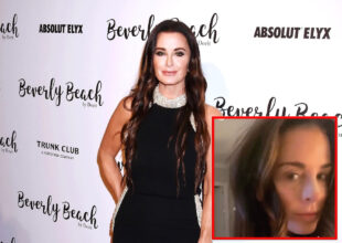 "PHOTOS: Kyle Richards Admits She Got a Second Nose Job Recently After Being Accused of Plastic Surgery, RHOBH Star on Why She Went Under the Knife Again and Shows Off Her ""Refined"" Tip"